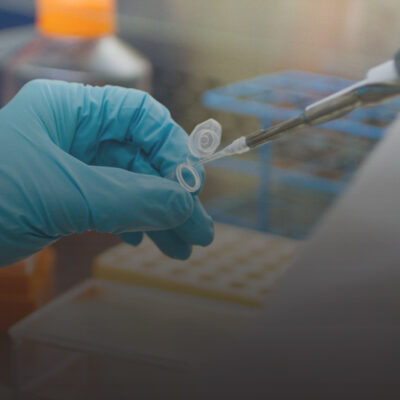A researcher pipetting a sample in a life-science lab.