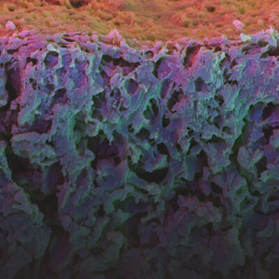 Microscope image of a biomaterial.