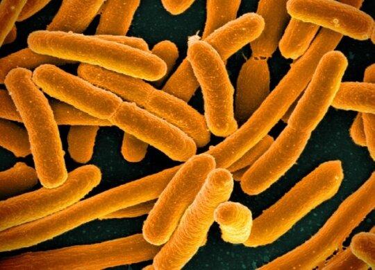 Micrograph of E. coli, courtesy of the NIH.